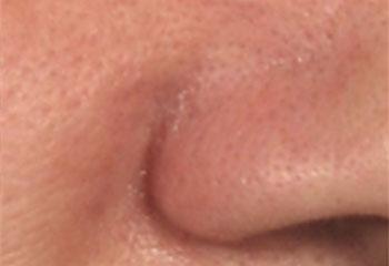 鼻 の 周り 赤み